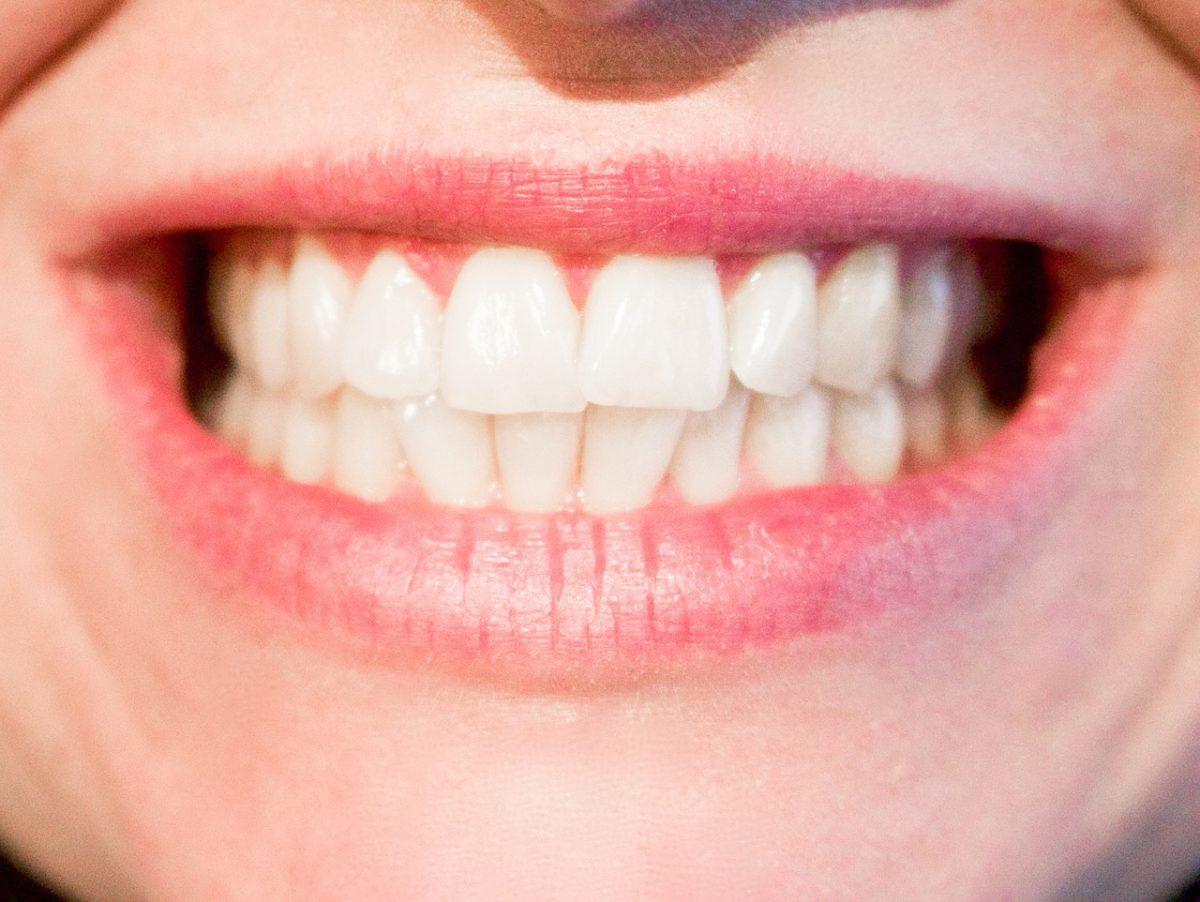 Nowoczesna technologia wykorzystywana w salonach stomatologii estetycznej zdoła sprawić, że odzyskamy śliczny uśmiech.